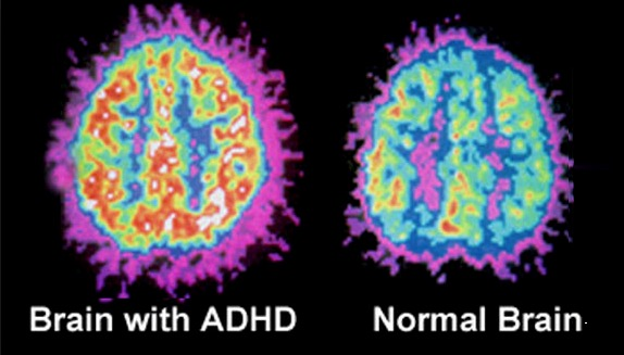 Differences In Brain Structure For Children With ADHD